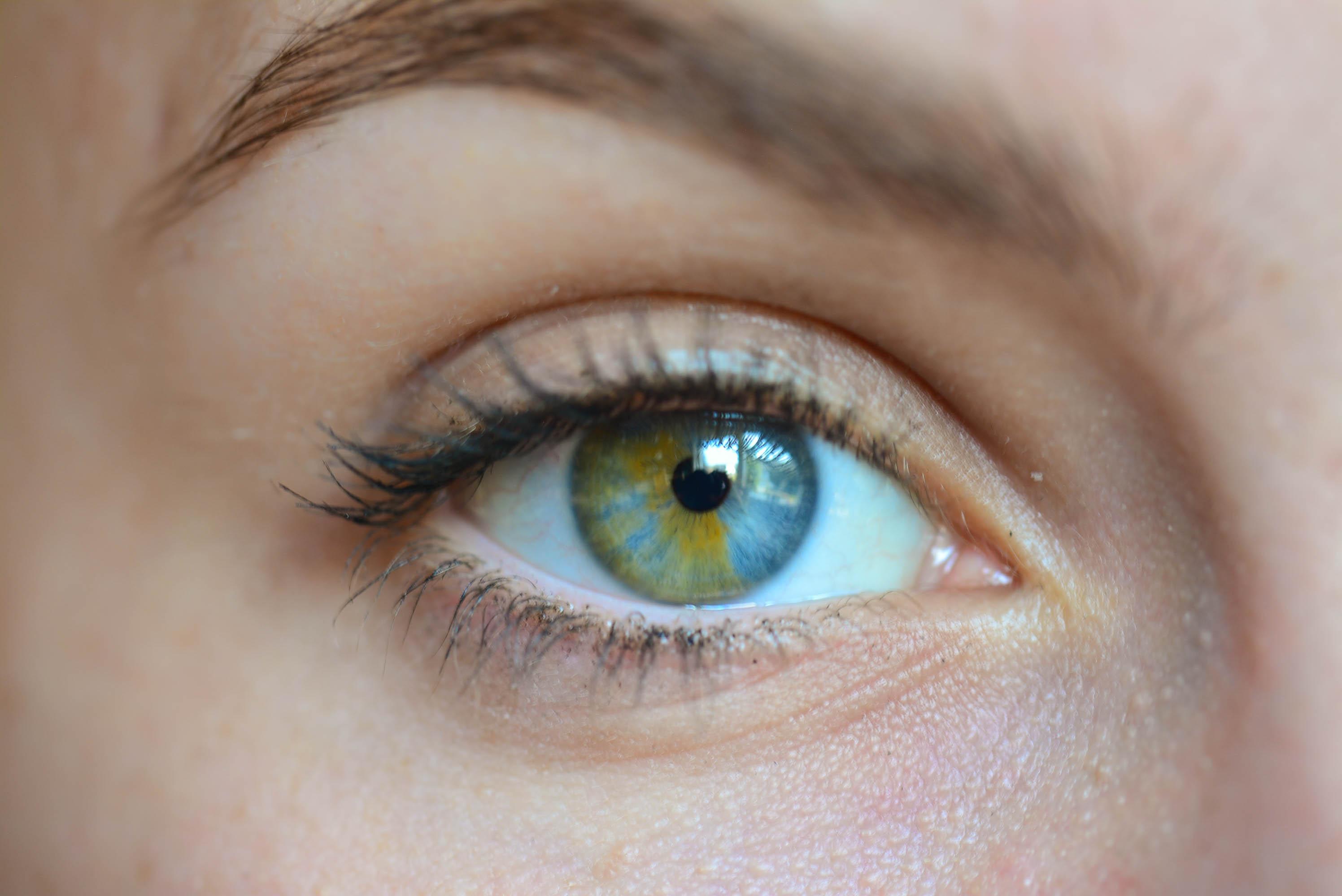 Qu'est-ce que les yeux vairons et pourquoi opter pour un