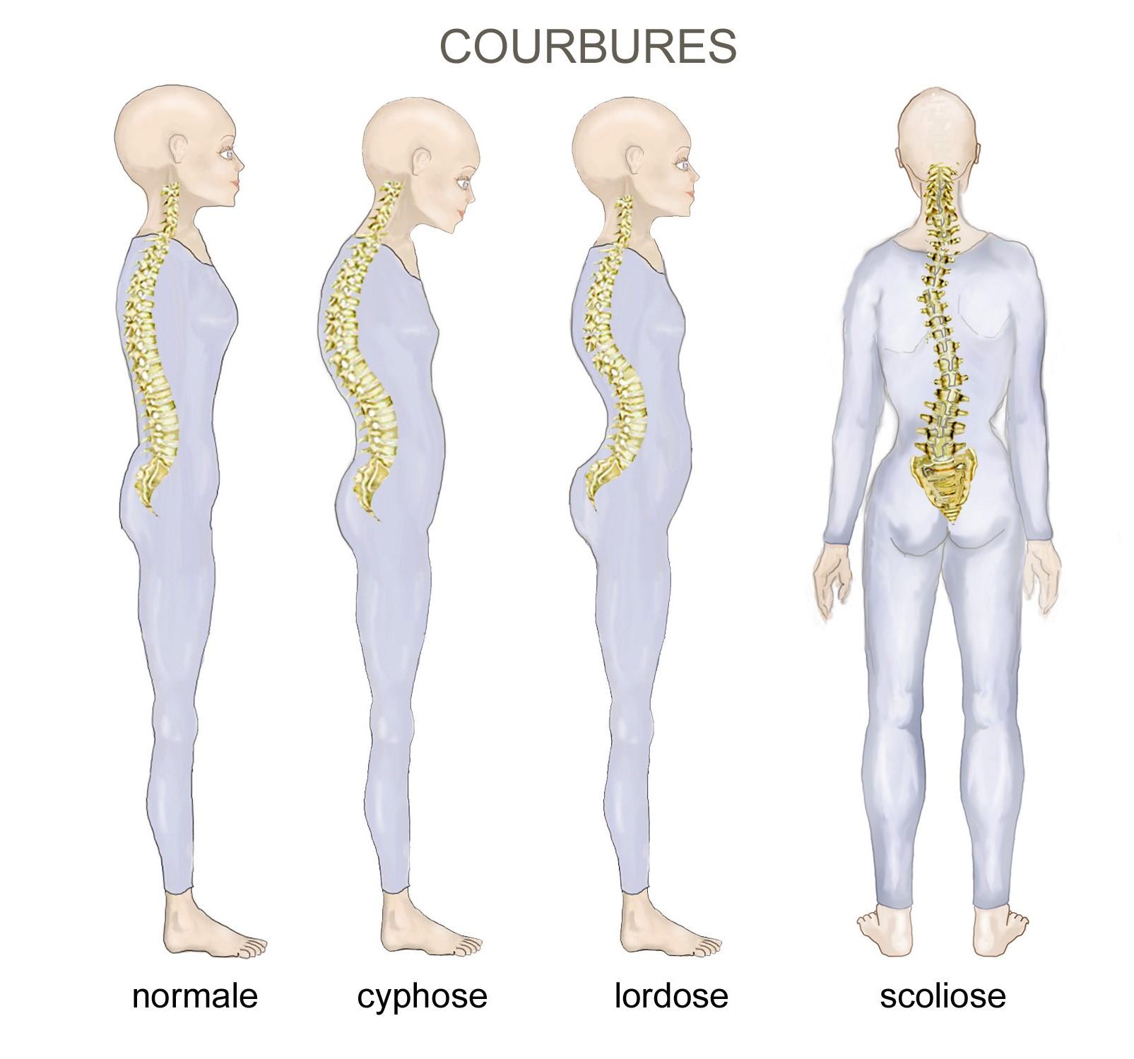 Découvrez l'arthrose dorsale : comment se prémunir ?